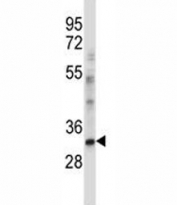 CEBPE antibody western blot analysis in NCI-H460 lysate. Predicted molecular weight ~30 kDa.