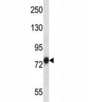 TRAP-1 antibody western blot analysis in NCI-H460 lysate. Expected molecular weight: 75-80 kDa.