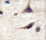 IHC analysis of FFPE human brain tissue stained with anti-TAU antibody