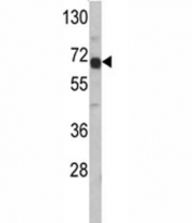 Western blot analysis of AFP antibody and HepG2 lysate. Predicted molecular weight: ~70kDa.