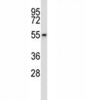 Wee2 antibody western blot analysis in HepG2 lysate.