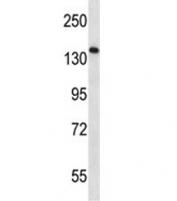 AATK antibody western blot analysis in CEM lysate