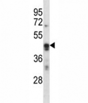 ARC antibody western blot analysis in K562 lysate. Predicted molecular weight ~45 kDa.