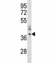 CRACM1 antibody western blot analysis in A375 lysate.