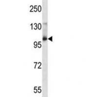 Aak1 antibody western blot analysis in mouse bladder tissue lysate. Predicted molecular weight: ~104kDa.