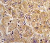 IHC analysis of FFPE human hepatocarcinoma tissue stained with ALDH1A1 antibody