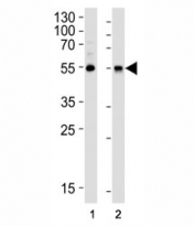 Western blot analysis of lysate from (1) HepG2 cell line and (2) human lung tissue lysate using ALDH1A1 antibody diluted at 1:1000.