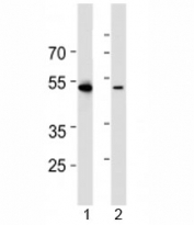 Western blot analysis of lysate from 1) HL-60 and 2) Jurkat cell line using RUNX3 antibody at 1:1000.