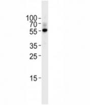 TGF Beta 2 antibody western blot analysis in Raji lysate. Predicted molecular weight ~50 kDa
