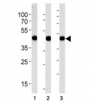 Alpha Actin antibody western blot analysis in (1) A549, (2) RD, and (3) human placenta lysate