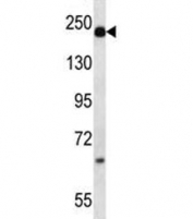 Alpha-2-macroglobulin antibody western blot analysis in mouse plasma lysate. Predicted molecular weight: ~163/200kDa (unmodified/glycosylated).