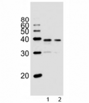 Western blot analysis of lysate from 1) PC3, and 2) LNCaP cell line using VDR antibody at 1:1000. Predicted molecular weight 48/54 kDa (isoforms 1/2).