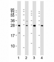 Western blot analysis of LIN28B antibody and 1) HeLa, 2) K562, 3) mouse testis and 4) NCCIT lysate. Predicted molecular weight ~27 kDa.