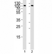 Western blot analysis of lysate from 1) Raji and 2) Ramos cell line using anti-CD19 antibody at 1:1000.  It is a glycoprotein visualized between 60~100 kDa.