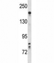 Kdr antibody western blot analysis in mouse lung tissue lysate. Predicted molecular weight: ~152 (immature), 180-200 kDa (intermediate) and 220-230 kDa (mature).