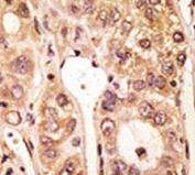 IHC analysis of FFPE human hepatocarcinoma tissue stained with the TLR5 antibody