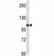 TLR8 antibody western blot analysis in mouse bladder tissue lysate. Expected molecular weight ~120 kDa.