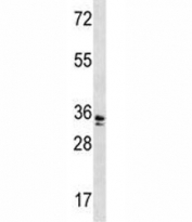 WDR5 antibody western blot analysis in A2058 lysate. Predicted molecular weight ~36 kDa.