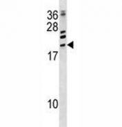 ATF3 antibody western blot analysis in CEM lysate.  Predicted size: 21-28 kDa