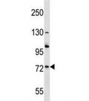 ACOX2 antibody western blot analysis in A375 lysate. Predicted molecular weight: ~75kDa.