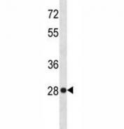 HMGB-1 antibody western blot analysis in HeLa lysate. Predicted molecular weight ~25 kDa.