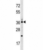CD68 antibody western blot analysis in MDA-MB453 lysate