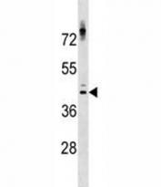 NKX2.1 antibody western blot analysis in ZR-75-1 lysate.