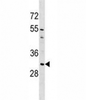 AQP1 antibody western blot analysis in A549 lysate. Predicted molecular weight ~28kDa.