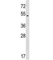 Western blot testing of human K562 lysate with ASIC5 antibody at 1:500. Predicted molecular weight ~57 kDa.