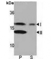 Western blot analysis of LC3 antibody and rat brain lysate: Both lipidated (arrow, II) and non-lipidated (arrow, I) were detected in membrane fraction (P) but only non-lipidated LC3 was detected in soluble fraction (S).
