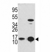 Western blot analysis of MAP1LC3B antibody and Y79 lysate and mouse brain tissue lysate