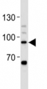 STAT-3 antibody western blot analysis in Daudi lysate. Predicted/observed molecular weight ~88kDa.