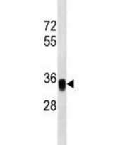 EpCAM antibody western blot analysis in MDA-MB453 lysate. Expected molecular weight: ~35 kDa (unmodified), 40-43 kDa (glycosylated).