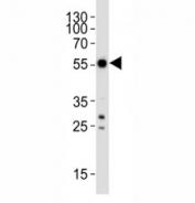 Western blot analysis of lysate from SH-SY5Y cell line using APG5/ ATG5 antibody at 1:1000. Predicted molecular weight ATG5: ~32 kDa; ATG5/ATG12 heterodimer: ~56 kDa.