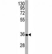 APG5 antibody western blot analysis in HeLa lysate. Predicted molecular weight ATG5: ~32 kDa; ATG5/ATG12 heterodimer: ~56 kDa.