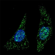 Fluorescent image of U251 cells stained with ATG5 antibody at 1:200. Immunoreactivity is localized to autophagic vacuoles in the cytoplasm.