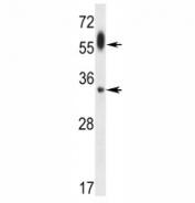 ATG-5 antibody western blot analysis in uterus tumor lysate. Predicted molecular weight ATG5: ~32 kDa; ATG5/ATG12 heterodimer: ~56 kDa.
