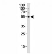 Western blot analysis of lysate from K562 cell line using ATG-5 antibody at 1:1000. Predicted molecular weight ATG5: ~32 kDa; ATG5/ATG12 heterodimer: ~56 kDa.
