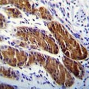 ATG-5 antibody immunohistochemistry analysis in formalin fixed and paraffin embedded human stomach tissue.