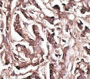 IHC analysis of FFPE human breast carcinoma tissue stained with the APG7 antibody