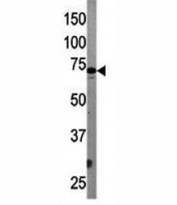 Western blot testing of APG7 antibody and mouse liver tissue lysate. Predicted molecular weight: 70-80 kDa.