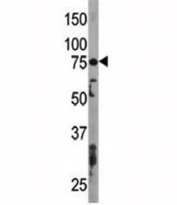 Western blot testing of ATG7 antibody and mouse liver tissue lysate. Predicted molecular weight: 70-80 kDa.