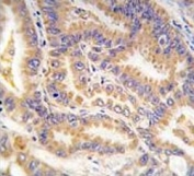 IHC analysis of FFPE human lung carcinoma tissue stained with ATG12 antibody
