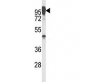Western blot analysis of anti-LAMP2 antibody and T47D lysate. The protein can be extensively glycosylated and visualized from 45~110 kDa.