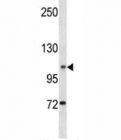 DOG1 antibody western blot analysis in K562 lysate