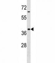 Hoxa9 antibody western blot analysis in MDA-MB453 lysate. Expected/observed molecular weight: ~30kDa.