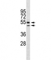 VDR antibody western blot analysis in HL-60 lysate. Predicted molecular weight 48/54 kDa (isoforms 1/2).