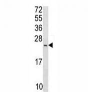 Anti-Bax antibody western blot analysis in T47D lysate