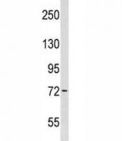 Wee1 antibody western blot analysis in WiDr lysate. Predicted molecular weight ~72 kDa.