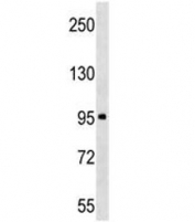 ABI3BP antibody western blot analysis in human K562 lysate. Predicted molecular weight ~118 kDa.